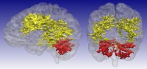조울증 환자의 뇌를 MRI로 촬영한 결과. 대뇌 백질(노란색)과 소뇌(붉은색)에서 뇌세포 대사활동에 이상이 있는 것으로 나타났다. - 아이오와대 제공